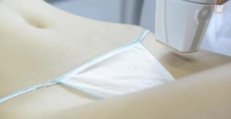 Depilacja Laserowa Gdańsk - VECTUS - Clinica Cosmetologica dr Igor Michajłowski