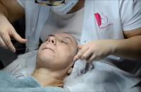 Depilacja twarzy nitką