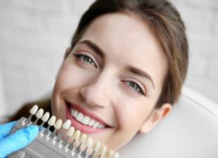 Wybielanie zębów - o czym warto wiedzieć?