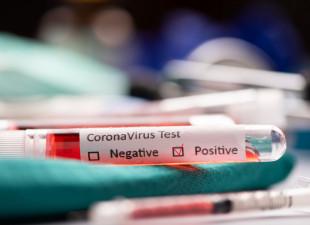 Testy na koronawirusa dla wszystkich pacjentów i personelu medycznego
