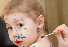 Zbliża się sezon na ospę i grypę - szczepić dziecko czy nie?