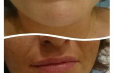 Modelowanie ust 1ml