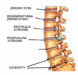 Przed rozpoczęciem leczenia bólu kręgosłupa trzeba znaleźć jego przyczynę.