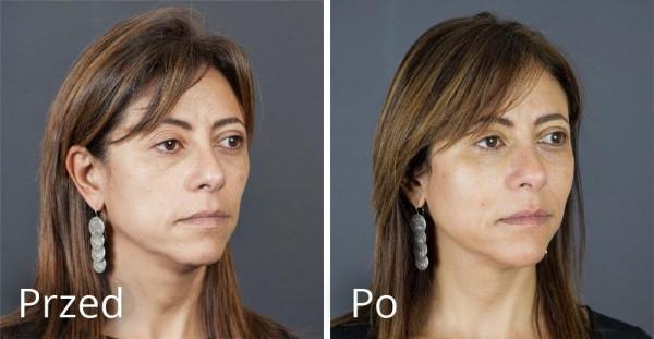 Kobieta 47 lat przed i po zabiegu preparatami Teosyal