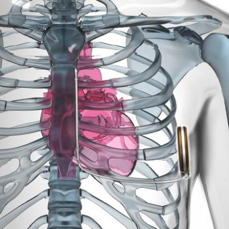 Układ S-ICD składa się z urządzenia o masie nieznacznie przekraczającej 100 g, umieszczanego podskórnie w lewej okolicy pachowej oraz elektrody układanej - także podskórnie - wzdłuż lewej krawędzi mostka.