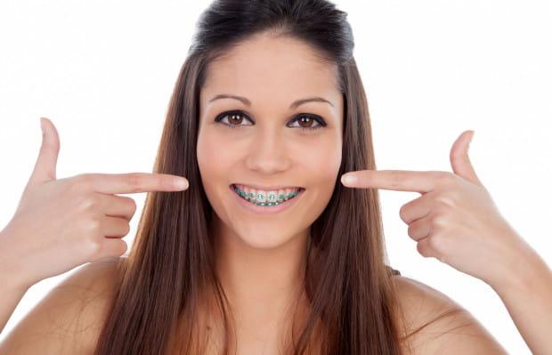 Kolorowe gumki ortodontyczne to idealny sposób na to, by nudny aparat zamienić w modny dodatek.