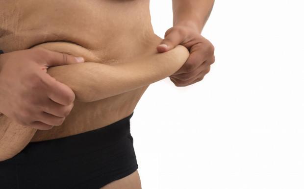 Nie ma procedury, która pokrywa koszty operacji usunięcia wiszącej skóry ramion, ud, podniesienia pośladków czy odtworzenia piersi, a takiej pomocy niejednokrotnie potrzebują pacjenci, którzy zgubili wagę w skutek operacji bariatrycznej.