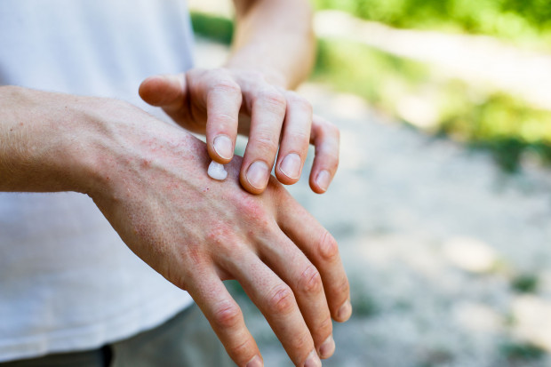 Przy nakładaniu kremu na dłonie pamiętajmy również o miejscach między palcami, o paznokciach oraz skórkach (szczególnie wtedy, kiedy mamy tendencję do ich twardości). Ważne, aby po nałożeniu produktu dać dłoniom czas na przyjęcie kosmetyku.