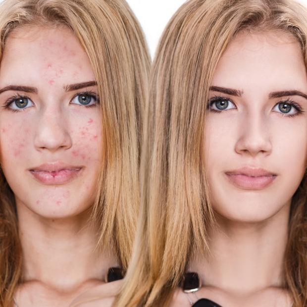 Leczenie trądziku może trwać kilka miesięcy, a nawet lat. Warto jednak wykazać cierpliwość, ponieważ efekty mogą okazać się spektakularne.