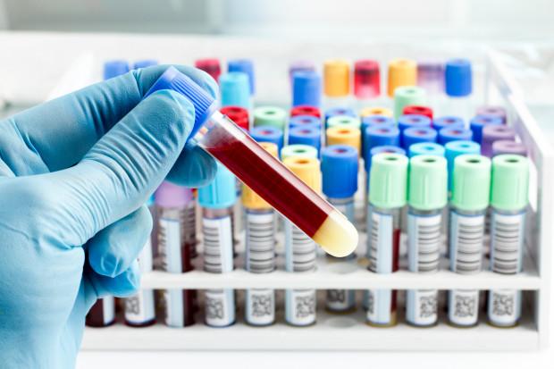 W Trójmieście można wykonać już prywatnie test na obecność koronawirusa. Jego koszt to 500 zł.