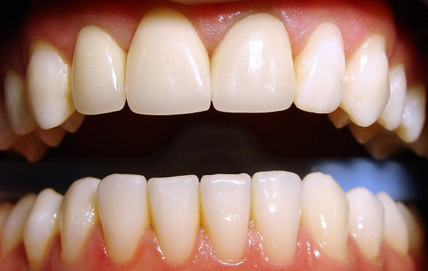 Licówki przykleja się na przednią powierzchnię zębów